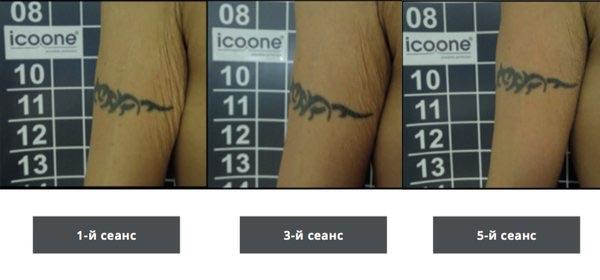 Результаты icoone - укрепление кожи рук
