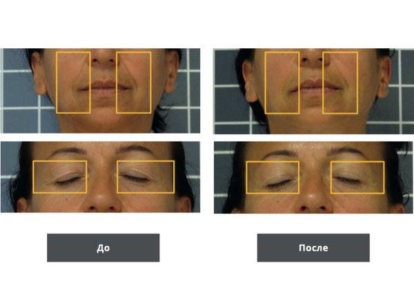 Результаты icoone - дренаж и стимуляция соединительной ткани