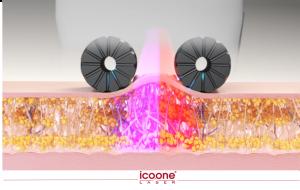 Roboderm лазер и LED